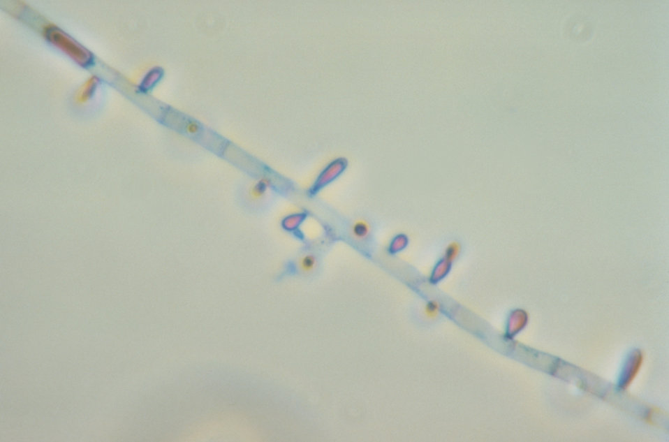 This photomicrograph reveals the microconidia of the fungus Trichophyton rubrum.