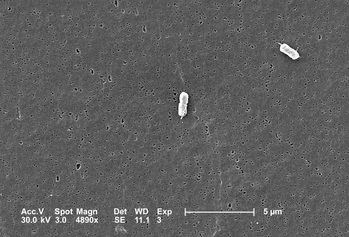 This scanning electron micrograph (SEM) depicts two Escherichia coli bacteria, clearly displaying one or more peritrichous flagella, i.e., f