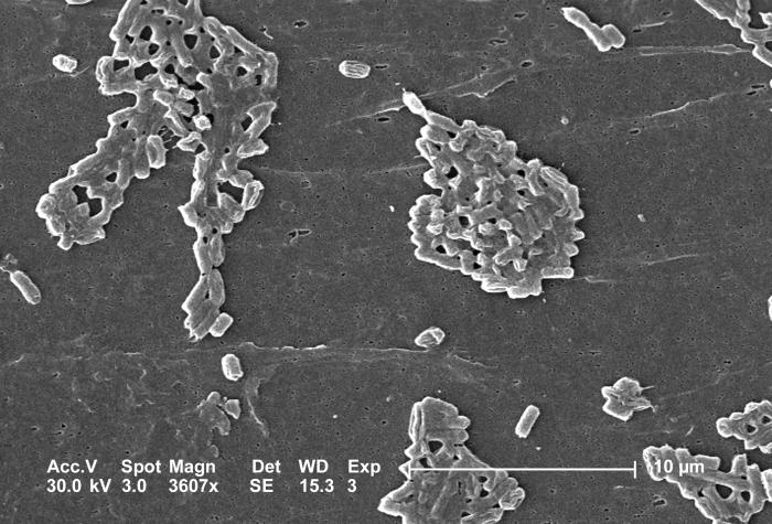 This scanning electron micrograph (SEM) depicts a number of rod-shaped Escherichia coli bacteria, some of which have formed colonial groupin