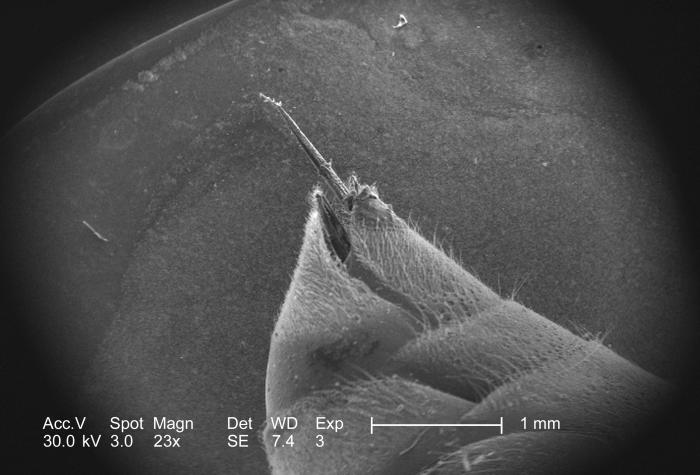 From a superior oblique perspective, and under a low magnification of 23x, this scanning electron micrograph (SEM) depicted some of the ultr