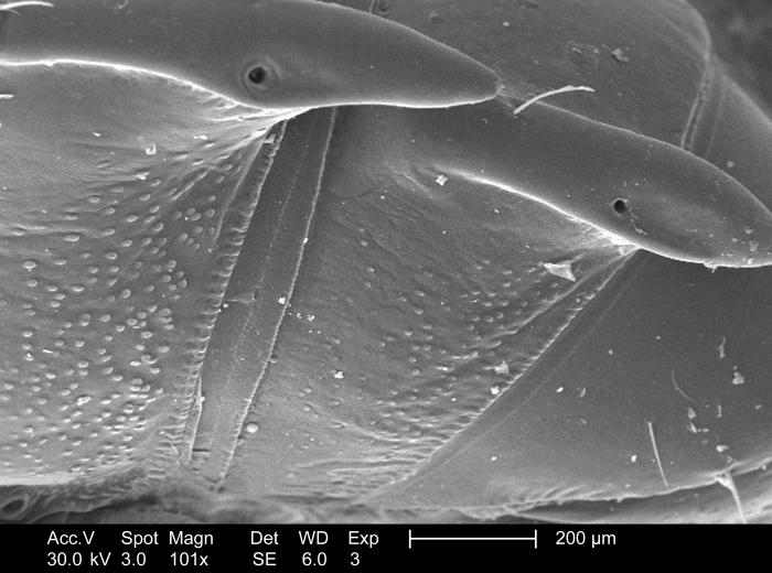 Magnified 101x, this scanning electron micrograph revealed some of the morphologic details adorning the surface of the chitinous exoskeletal