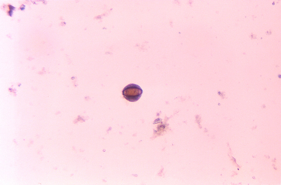 Balantidium coli cyst with Trichuris egg inside.  Unstained wet mount.  Protozoon, roundworm, nematode, parasite.
