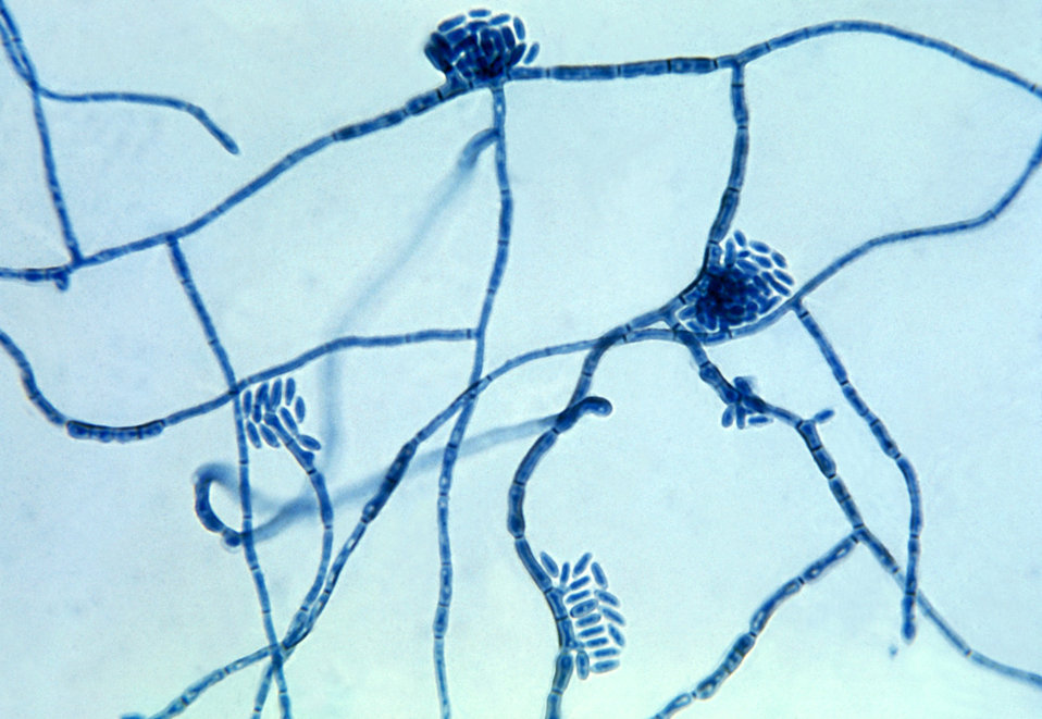 This micrograph of the fungus Hortaea werneckii, the causative agent of tinea nigra, was taken from a slide culture.