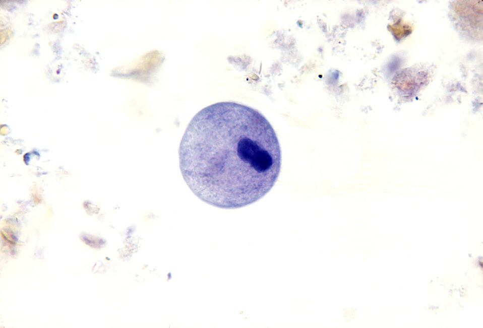 Balantidium coli cyst.  Parasite.