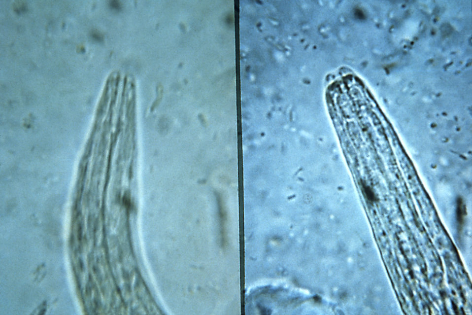 This micrograph depicts the mouth parts of rhabditiform staged larvae of a hookworm (Lt), and strongyloides (Rt); Mag. 500X.