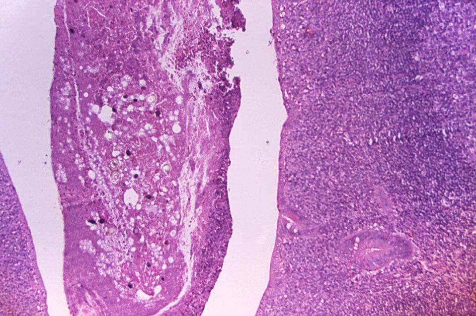 Histopathology of Taenia saginata in appendix.  Parasite.