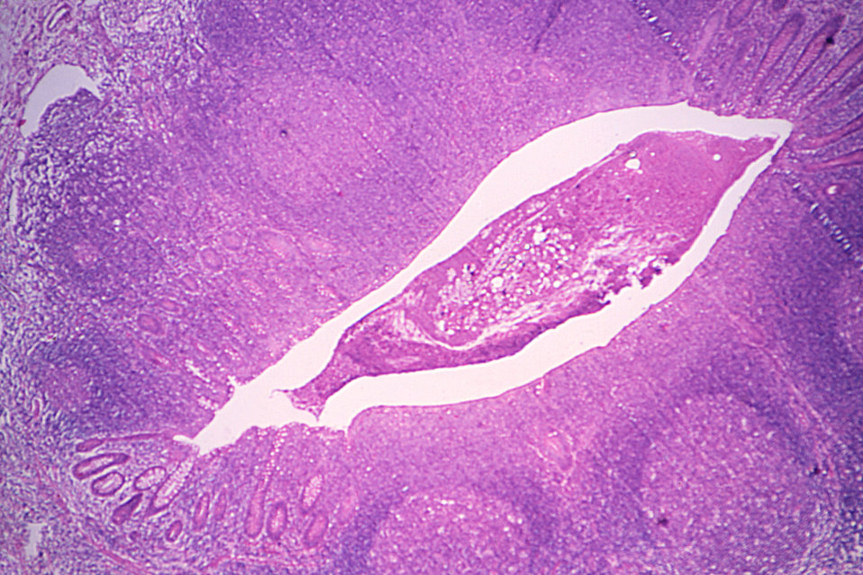 Histopathology of Taenia saginata in appendix.  Parasite.