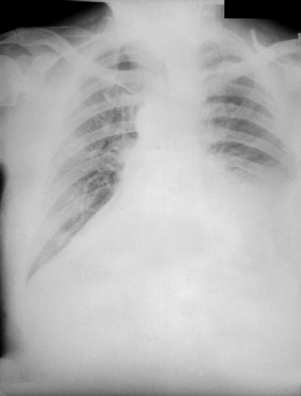 PA chest radiograph of anthrax, 4th day of illness.