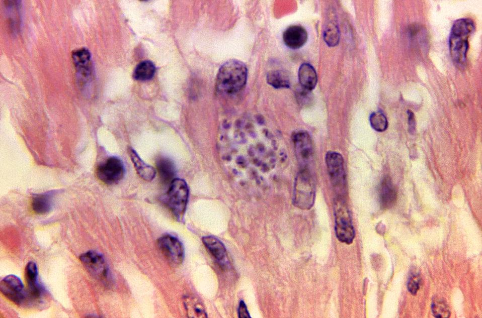 Trypanosoma cruzi in monkey heart.  Histopathology.
