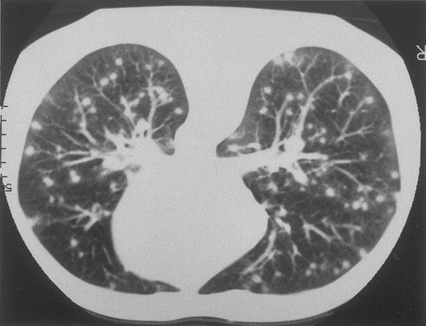 Computed tomography scan of lungs showing classic snowstorm appearance of acute histoplasmosis
