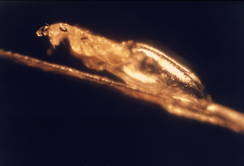 This image was captured while a Head Louse, Pediculus humanus, was emerging from its egg.