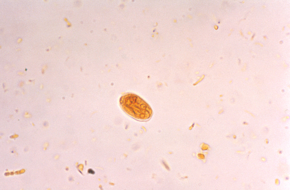 Photomicrograph of a Giardia lamblia cyst visualized using an Iodine stain.