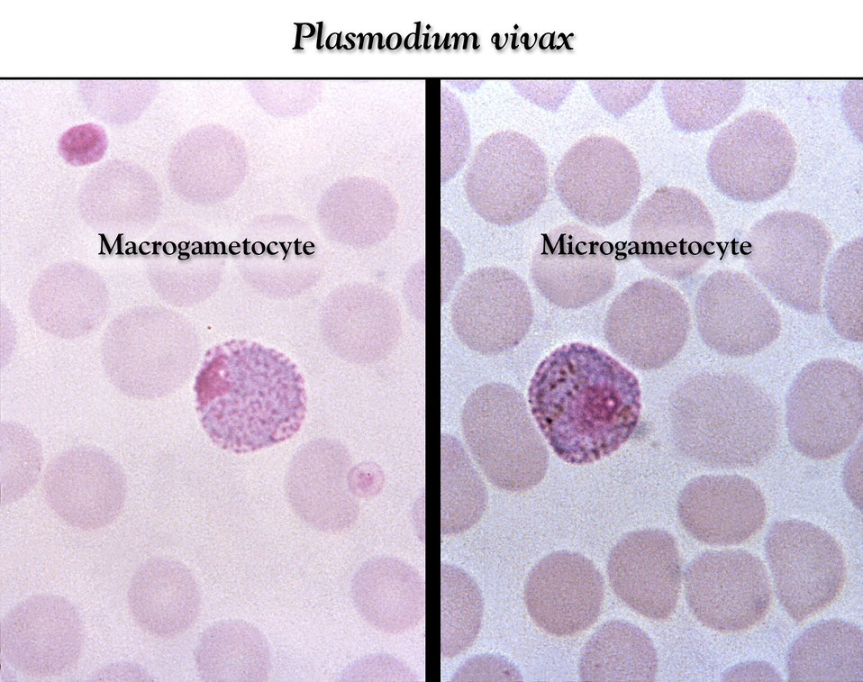These thin film Giemsa stained micrographs depict a Plasmodium vivax macro- (Lt), and microgametocyte (Rt).