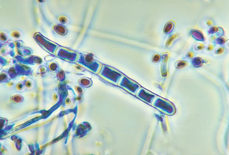 Magnified 1125X, this micrograph reveals both a macroconidium and some microconidia of the fungus Trichophyton rubrum var. rodhaini.