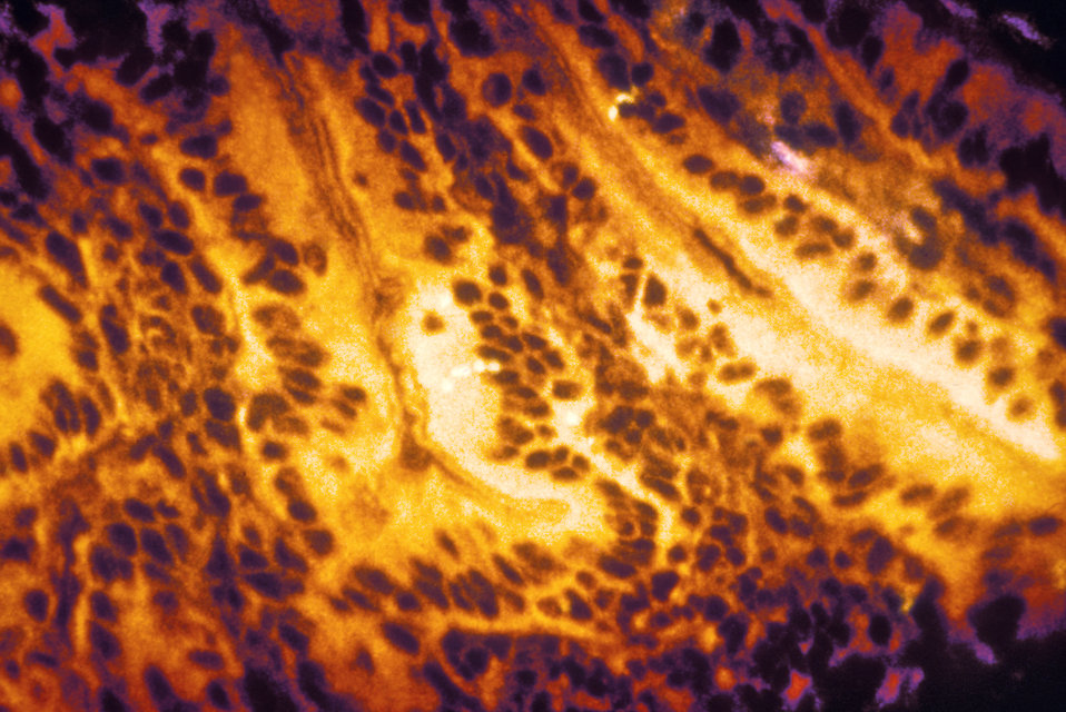 This micrograph reveals some of the histopathologic changes found in an intestinal tissue specimen indicative of first-stage shigellosis. At