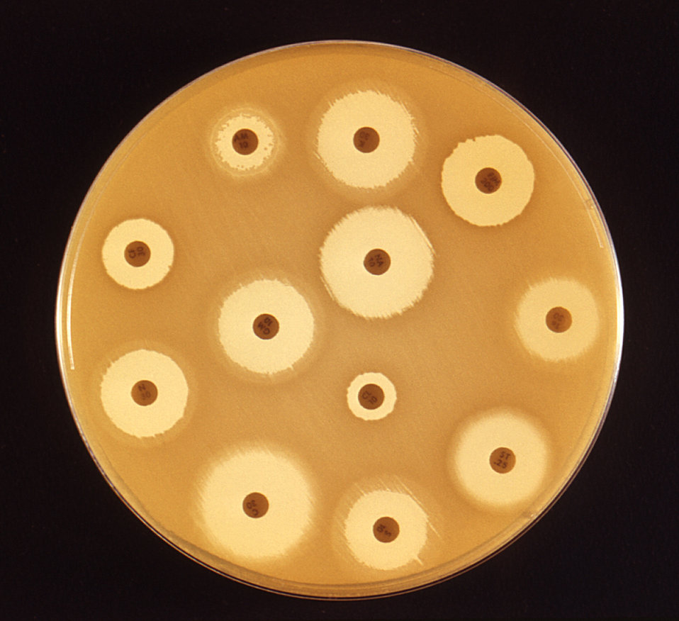 This 1972 image depicted a Mueller-Hinton agar culture plate that had been used in an antibiotic susceptibility test (AST). Known as the Kir