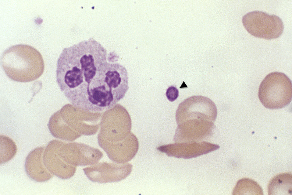 This micrograph of a fixed blood smear revealed a round aggregation of platelets (arrow), a polymorphonuclear leukocyte (PMN), and a number