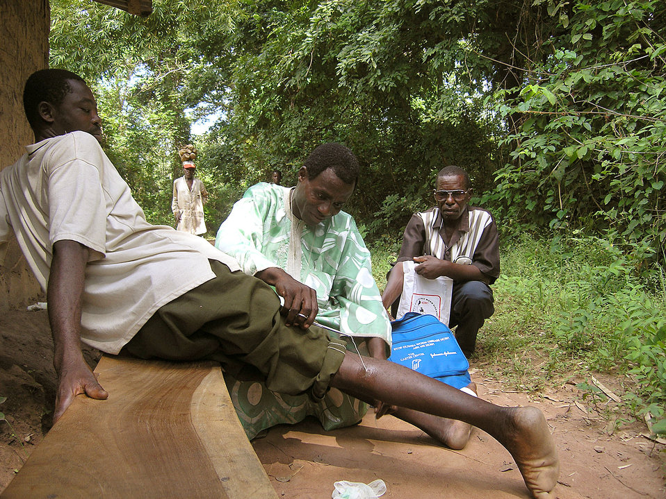 This photograph depicts a Nigerian man having a Guinea worm, Dracunculus medinensis, extracted from his right lower leg. The roundworm has e