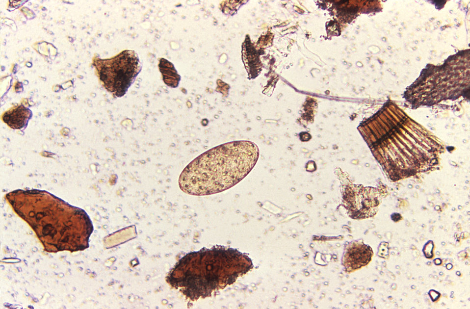 Magnified 125X, at its center, this photomicrograph revealed the presence of a Fasciolopsis buski trematode egg found in an unstained formal