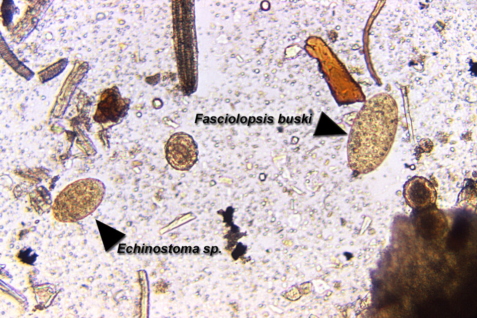 Magnified 125X, this photomicrograph revealed the presence of two trematode eggs, a Fasciolopsis buski egg on the right, and an Echinostoma