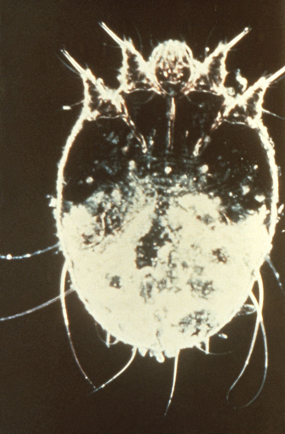 This is a Sarcoptes scabiei var. hominis or 'itch mite', often associated with the transmission of human scabies.