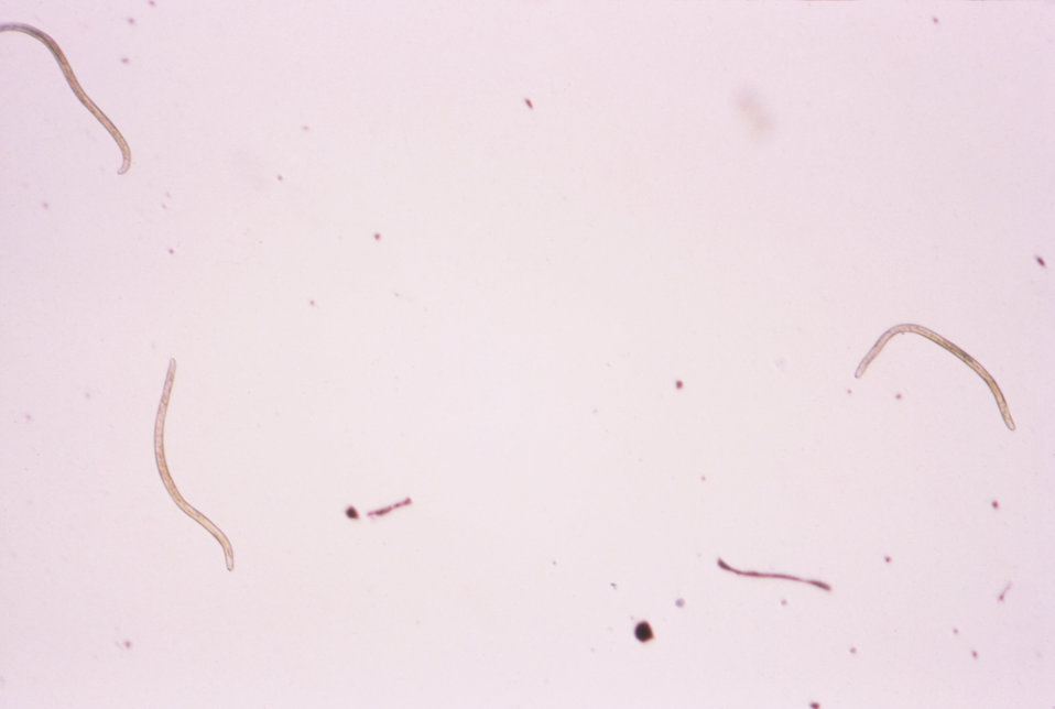This is a glycerine mount photomicrograph of the microfilarial pathogen Onchocerca volvulus in its larval form.