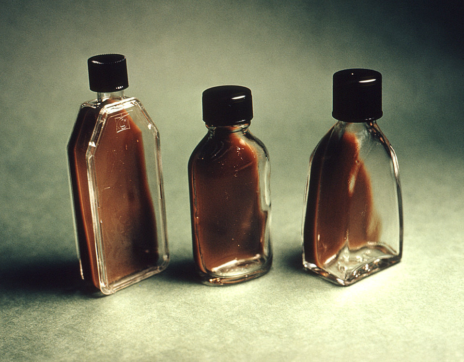 These flasks contain 'Transgrow' medium used to transport an N. gonorrhoeae specimen to a laboratory for testing.