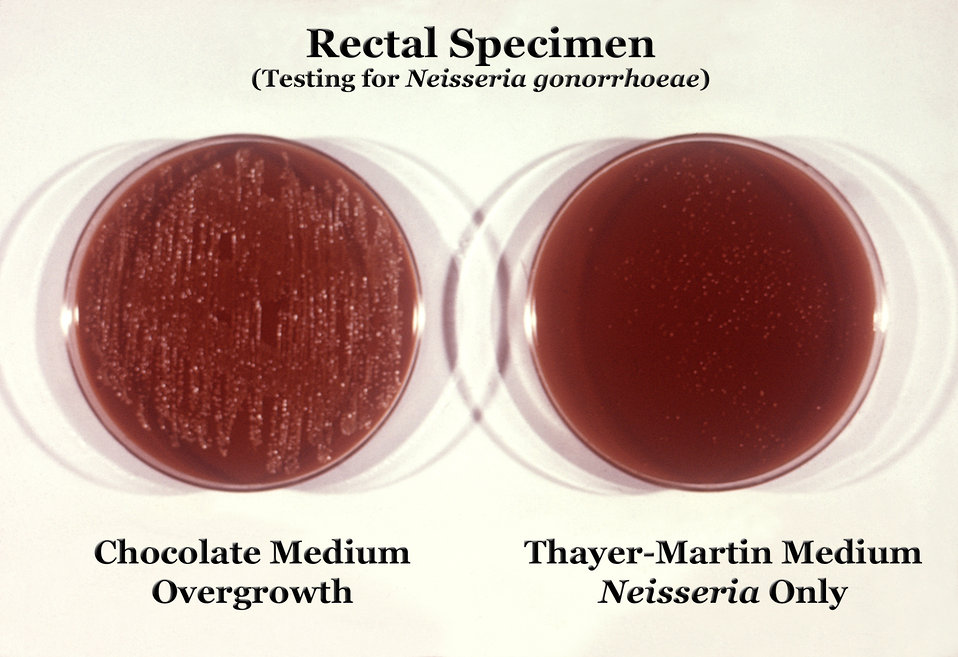 These were two culture plates used to grow colonies of Neisseria gonorrhoeae bacteria.