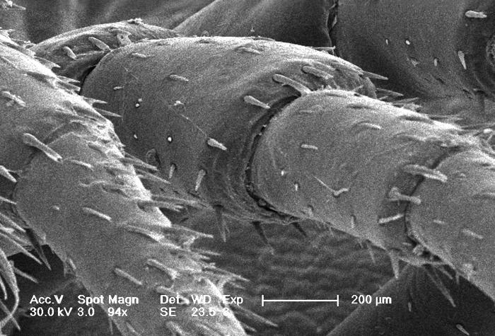 This scanning electron micrograph (SEM) depicted a greatly magnified infero-oblique view of the trunk region leg segments of an unidentified