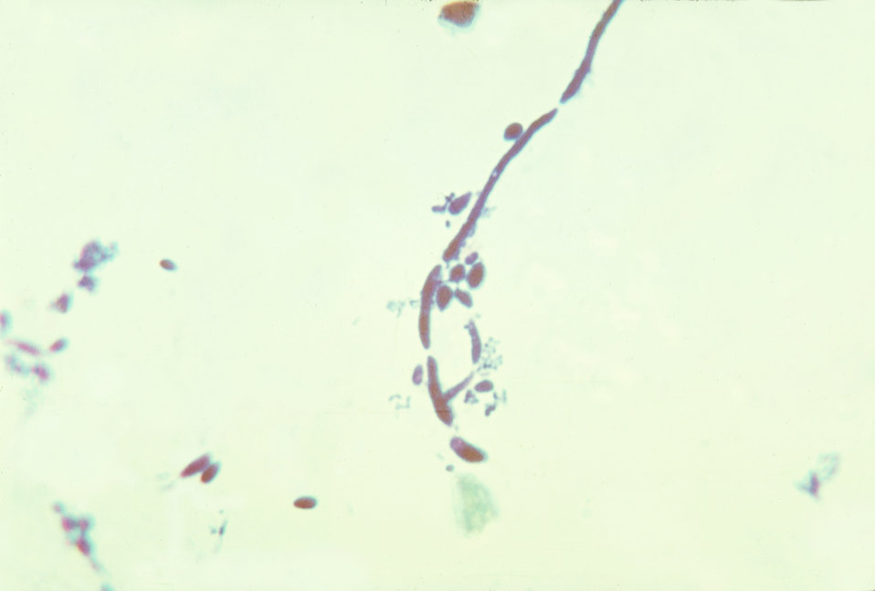 This is a photomicrograph of the fungus Candida albicans in a sputum sample.
