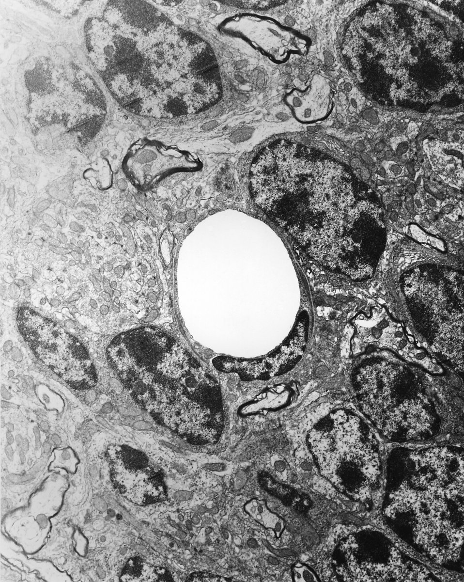 This 1978 transmission electron micrograph (TEM) depicted a cross-sectional view of a normal, uninfected mouse brain capillary that has been
