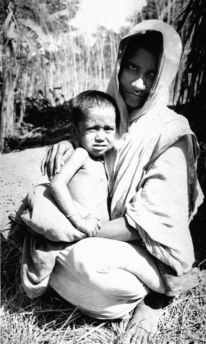 This 1975 photograph depicted a mother holding her 2 year old female child by the name of Rahima Banu, who was actually the last known case