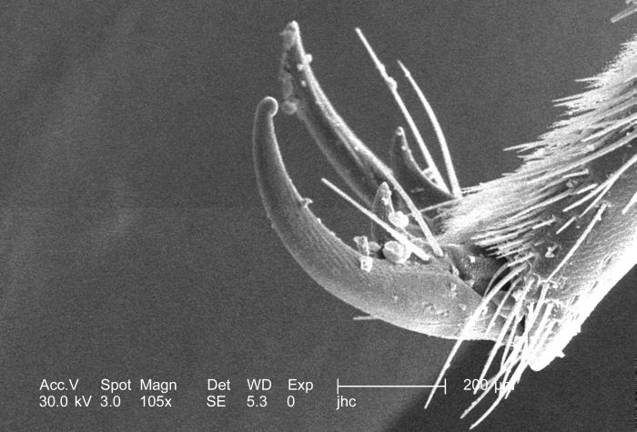At a low magnification of 105x this scanning electron micrograph (SEM) depicted some of the morphologic details found at the distal end of a