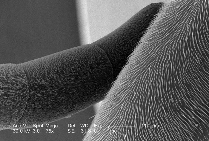 Under a relatively low magnification of only 75X, which is 7.5X greater than PHIL 10097, this scanning electron micrograph (SEM) depicted th