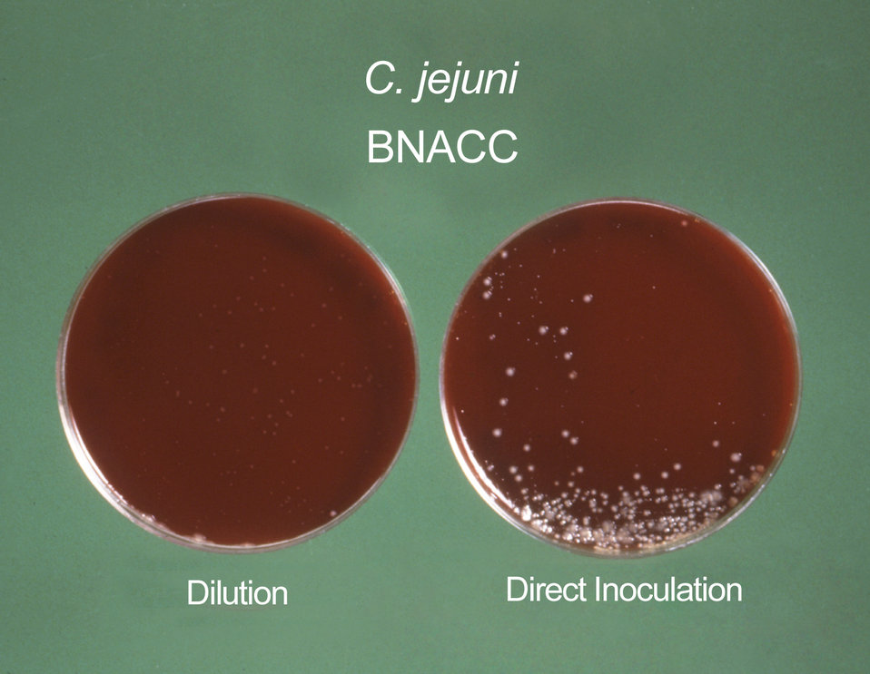 These Campylobacter fetus (C. fetus ss. jejuni) cultures were grown on Skirrow's and Butzler's medium.