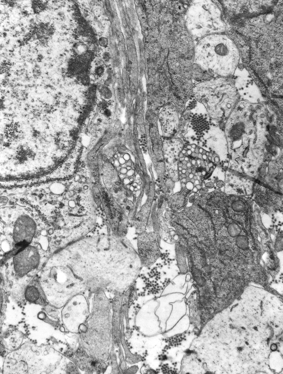 This 1975 transmission electron micrograph (TEM) revealed the presence of a number of Eastern Equine Encephalitis (EEE) virus virions in thi
