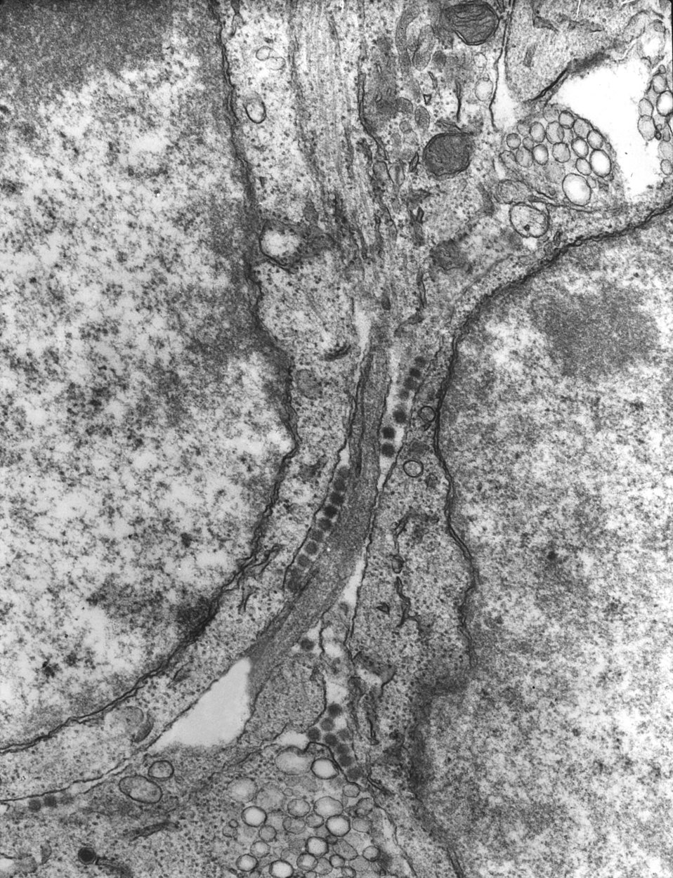 This 1975 transmission electron micrograph (TEM) revealed the presence of a number of Bunyamwera virus virions, a member of the virus family