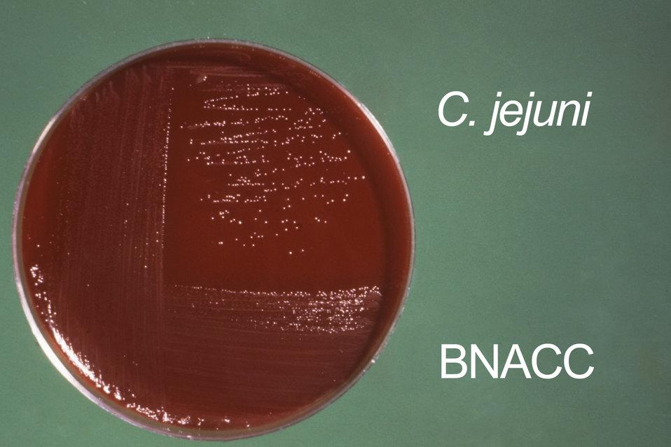 This Campylobacter fetus (C. fetus ss. jejuni) culture was grown on Skirrow's and Butzler's medium.