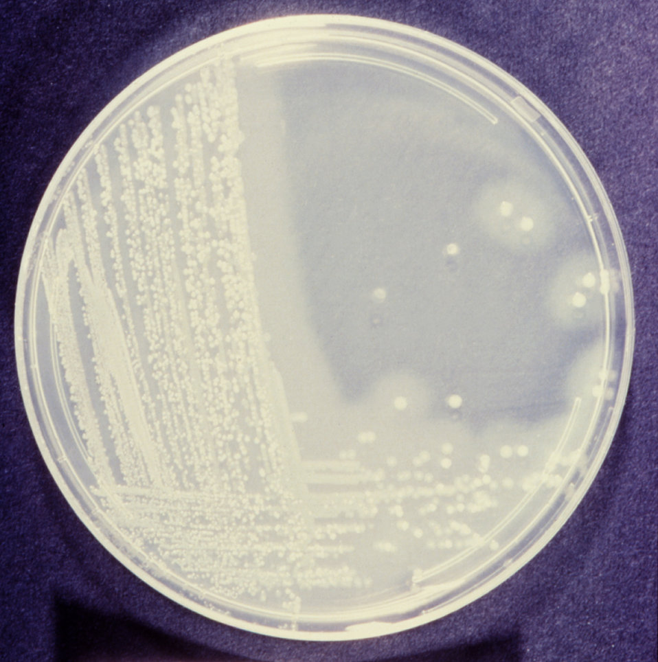 This gelatin agar medium was used in the identification of the bacteria Vibrio cholerae, the causal agent of cholera.