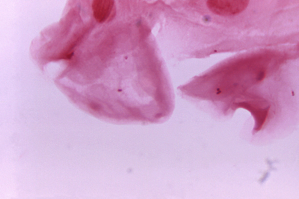 This photomicrograph of a urethral exudate specimen, contains gram-negative diplococci; Magnified 1125X.