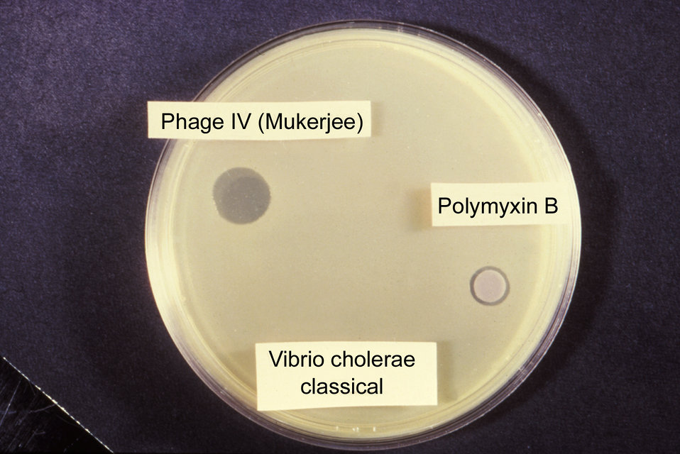 This was a classic sensitivity test for Vibrio cholerae involving Group IV bacteriophage and Polymyxin B.