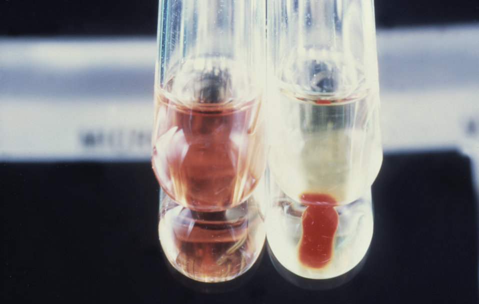 These are hemolysis test tubes used for the purpose of isolation and identification of Vibrio cholerae.
