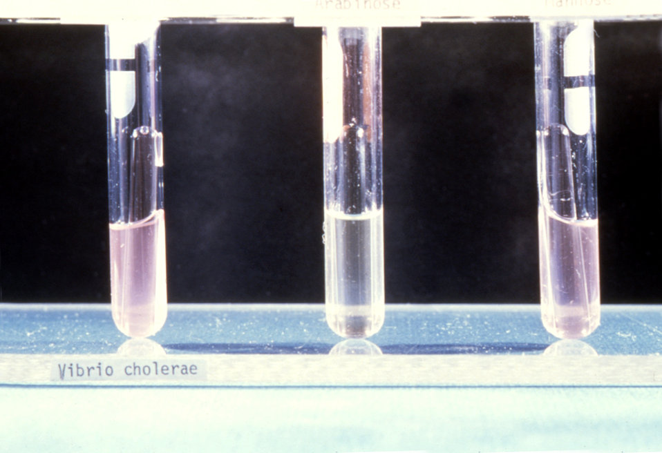This image depicts the Heiberg Fermentation lab test used during the isolation and identification of Vibrio cholerae.