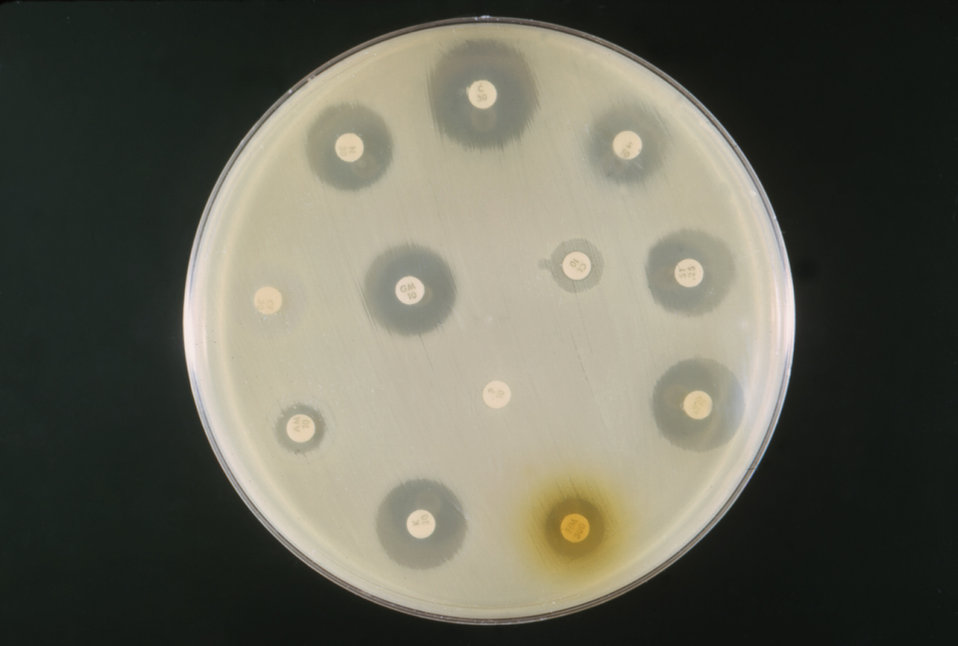 This is an example of an antibiotic sensitivity test on a mixed culture of E. coli and a Proteus sp., at a pH 7.2.
