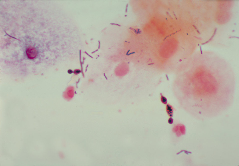 This is a photomicrograph of a vaginal smear identifying Candida albicans using gram-stain technique.