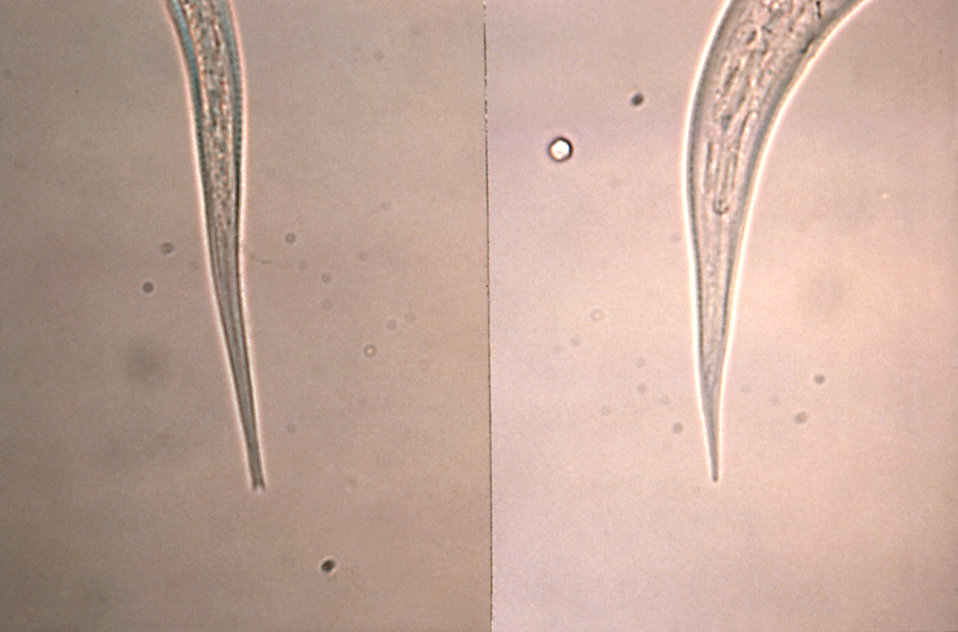 This micrograph depicts the tail tip of a Strongyloides filariform infective stage larvae on the left, and a hookworm on the right. Note the
