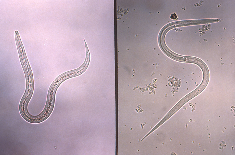 This micrograph depicts a hookworm (Lt), and a Strongyloides (Rt) filariform infective stage larvae.