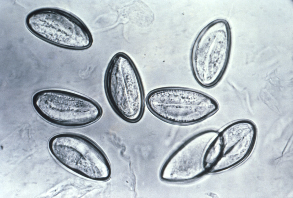 This photomicrograph depicts the eggs of the nematode, or round worm Enterobius vermicularis mounted on cellulose tape.