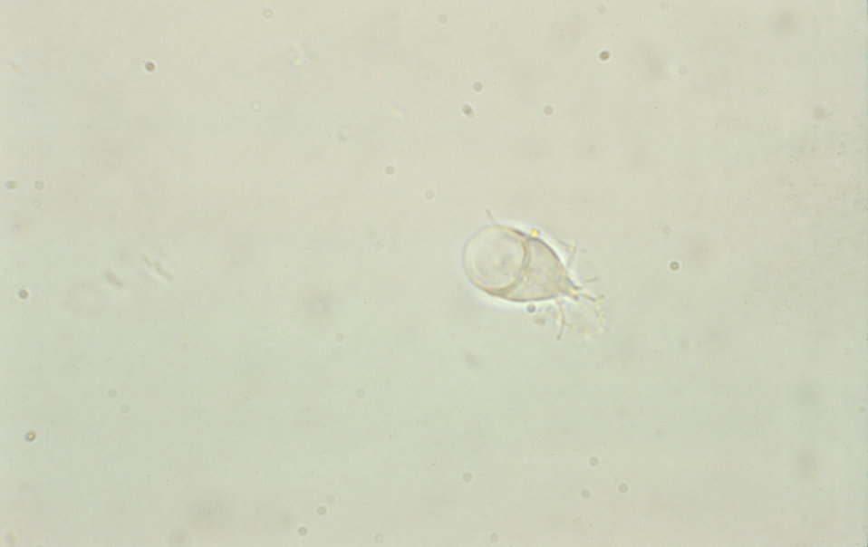This unstained photomicrograph reveals a Giardia lamblia trophozoite with its sucking disk visible.