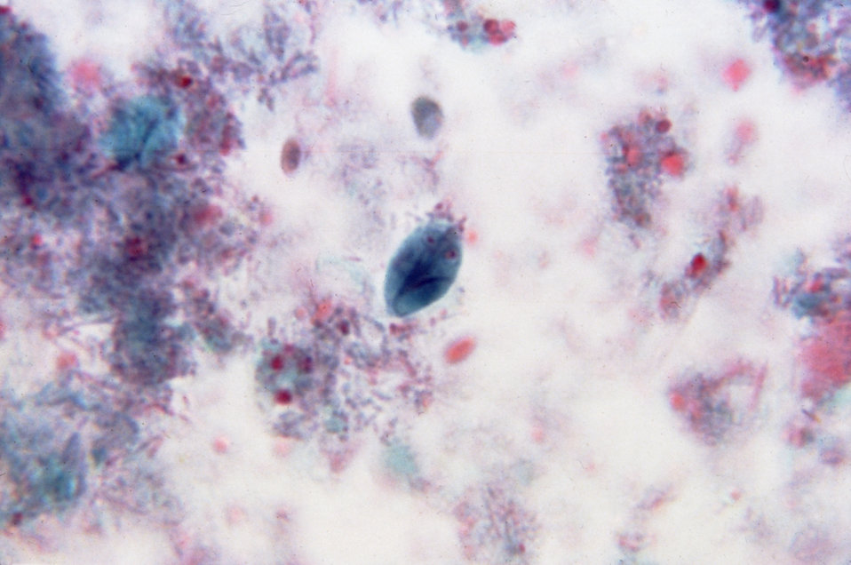 This photomicrograph reveals a Giardia lamblia cyst using a trichrome stain.